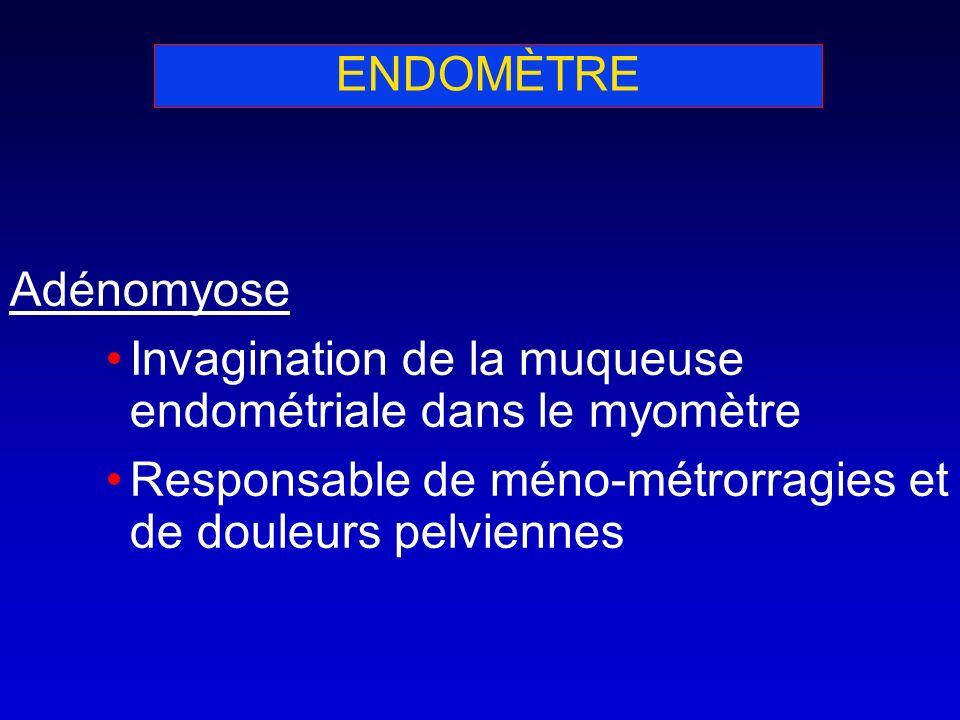 ENDOMÈTRE Adénomyose. Invagination de la muqueuse endométriale dans le myomètre.
