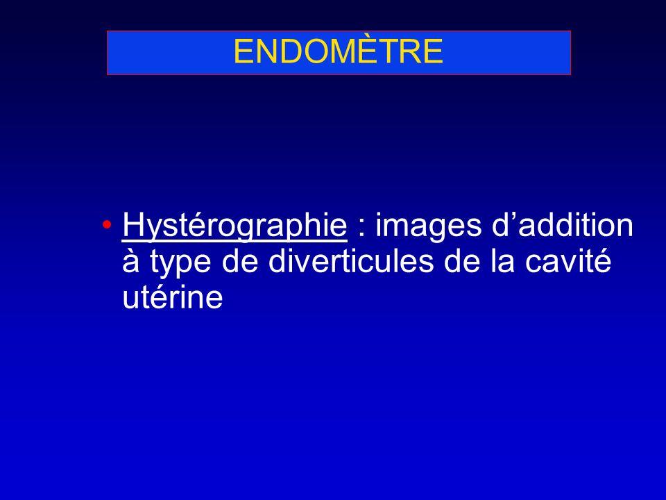 ENDOMÈTRE Hystérographie : images d'addition à type de diverticules de la cavité utérine