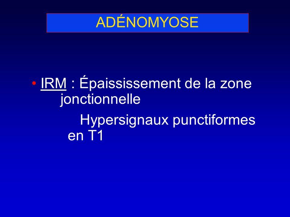 ADÉNOMYOSE IRM : Épaississement de la zone jonctionnelle Hypersignaux punctiformes en T1