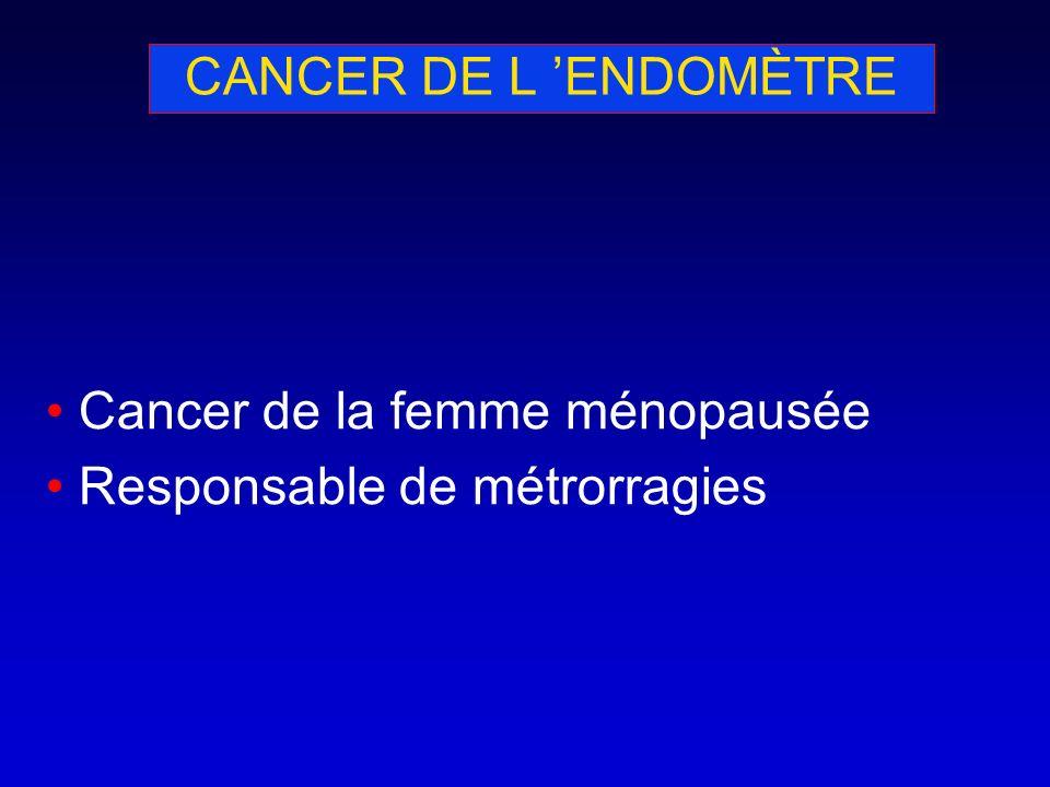 CANCER DE L 'ENDOMÈTRE Cancer de la femme ménopausée Responsable de métrorragies