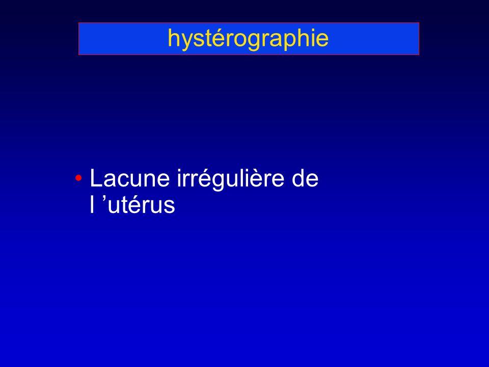 hystérographie Lacune irrégulière de l 'utérus