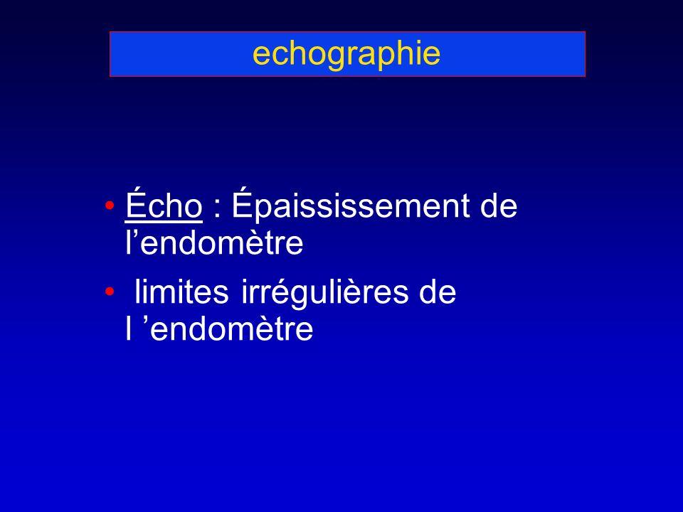 echographie Écho : Épaississement de l'endomètre limites irrégulières de l 'endomètre