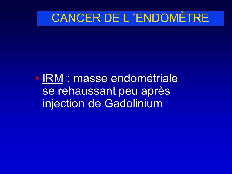 CANCER DE L 'ENDOMÈTRE IRM : masse endométriale se rehaussant peu après injection de Gadolinium