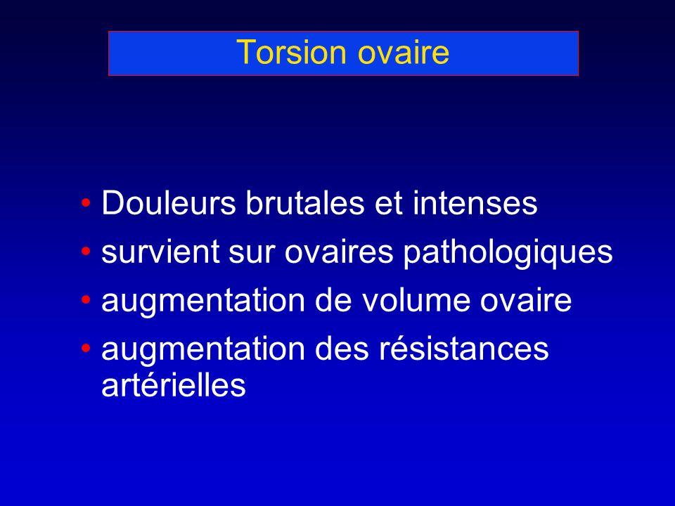 Torsion ovaire Douleurs brutales et intenses. survient sur ovaires pathologiques. augmentation de volume ovaire.