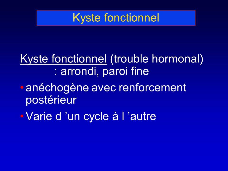 Kyste fonctionnel Kyste fonctionnel (trouble hormonal) : arrondi, paroi fine. anéchogène avec renforcement postérieur.