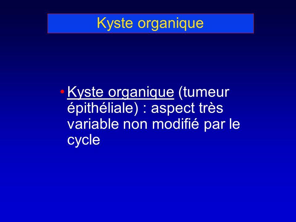 Kyste organique Kyste organique (tumeur épithéliale) : aspect très variable non modifié par le cycle.