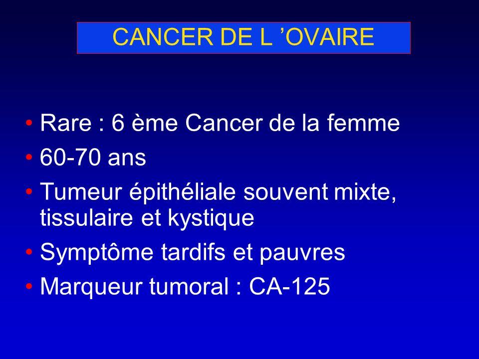 CANCER DE L 'OVAIRE Rare : 6 ème Cancer de la femme. 60-70 ans. Tumeur épithéliale souvent mixte, tissulaire et kystique.