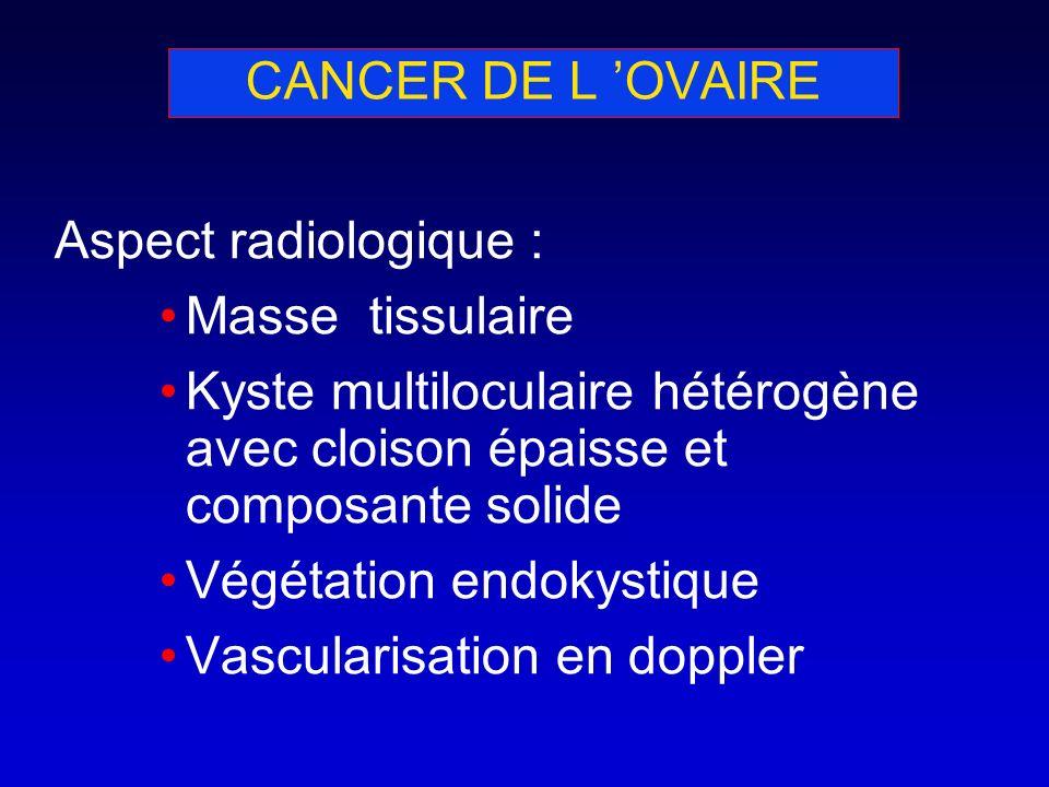 CANCER DE L 'OVAIRE Aspect radiologique : Masse tissulaire. Kyste multiloculaire hétérogène avec cloison épaisse et composante solide.
