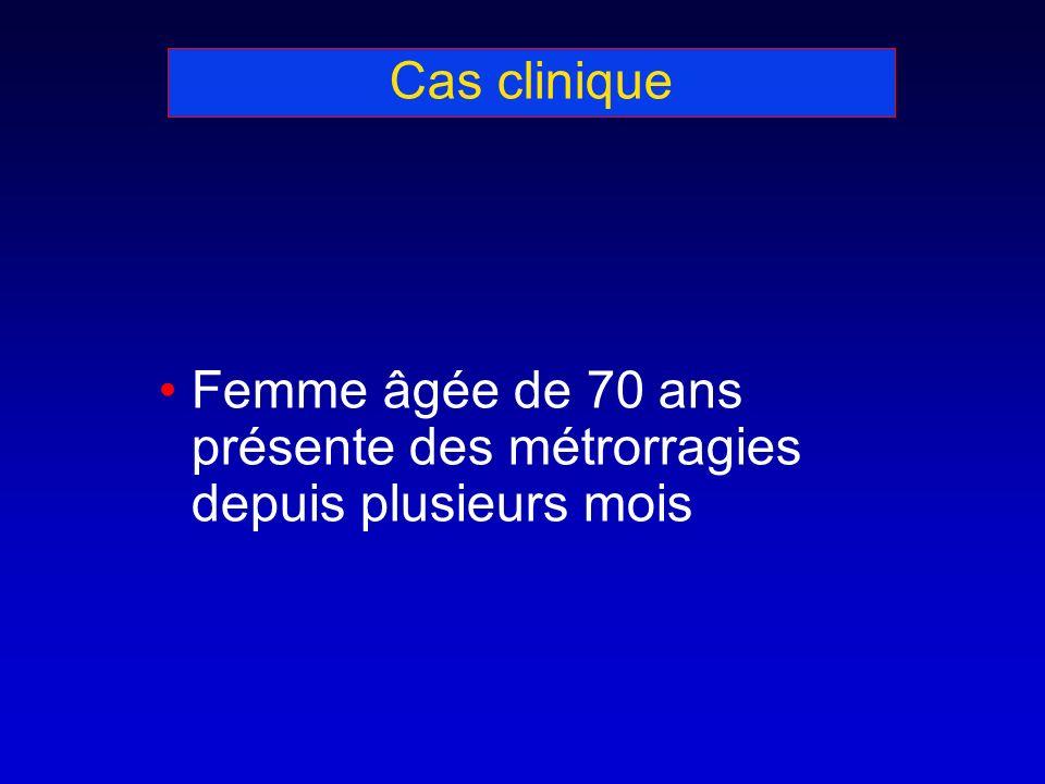 Cas clinique Femme âgée de 70 ans présente des métrorragies depuis plusieurs mois