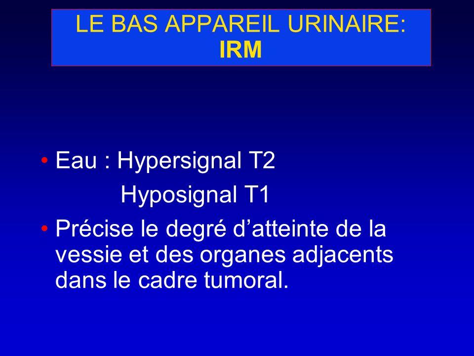 LE BAS APPAREIL URINAIRE: IRM
