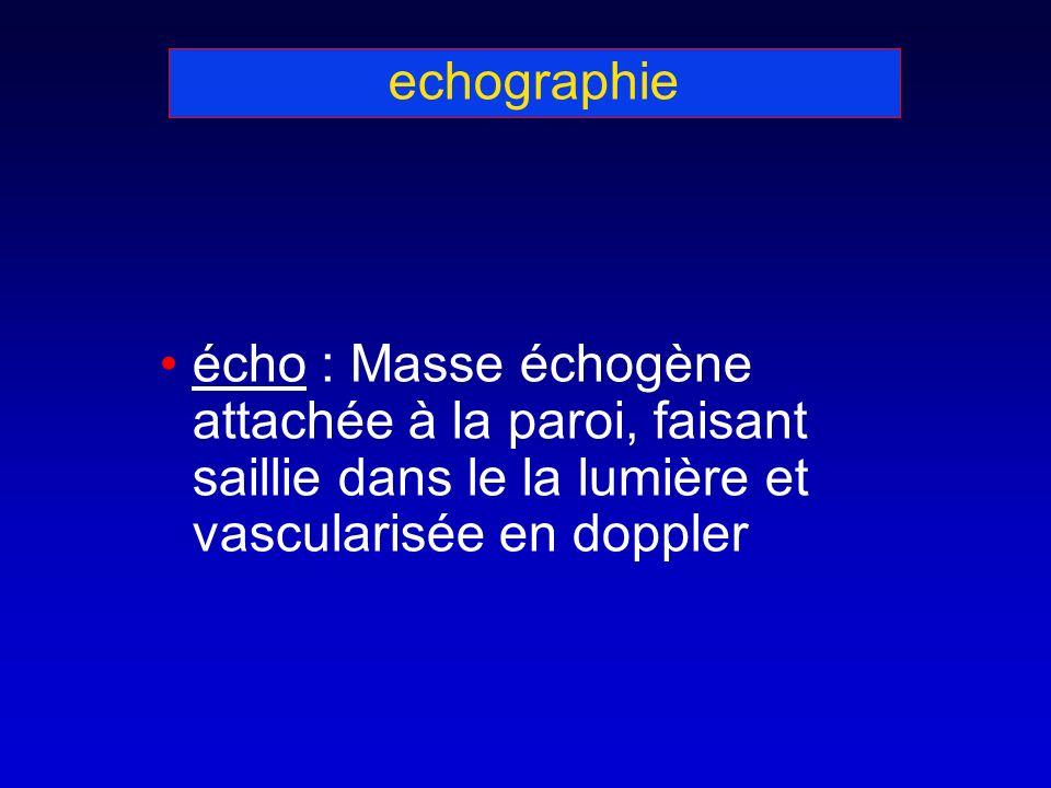 echographie écho : Masse échogène attachée à la paroi, faisant saillie dans le la lumière et vascularisée en doppler.