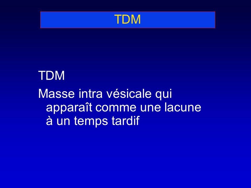 TDM TDM Masse intra vésicale qui apparaît comme une lacune à un temps tardif