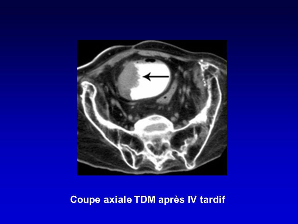 Coupe axiale TDM après IV tardif