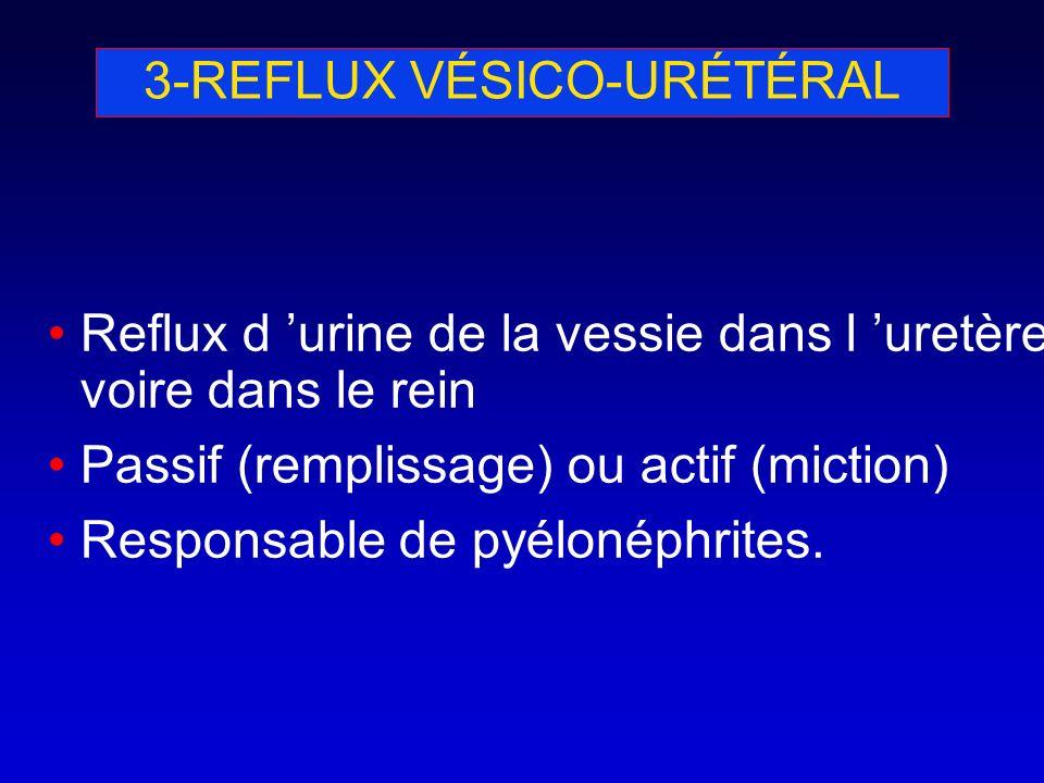 3-REFLUX VÉSICO-URÉTÉRAL