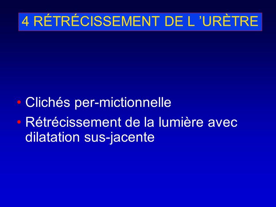4 RÉTRÉCISSEMENT DE L 'URÈTRE