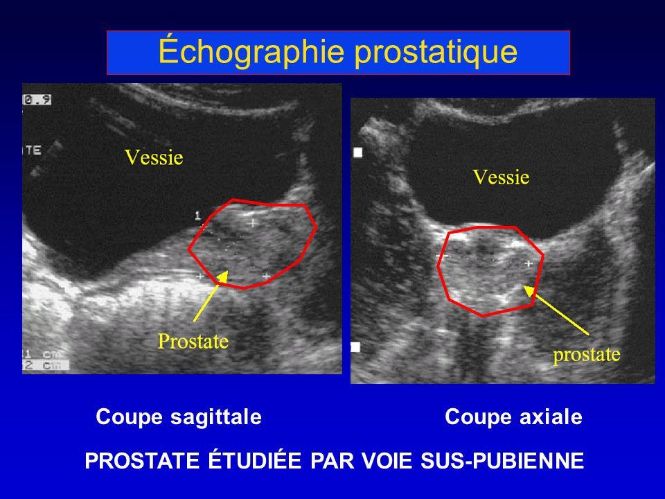 Échographie prostatique