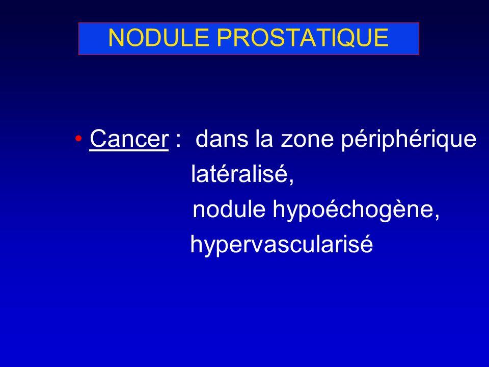 NODULE PROSTATIQUE Cancer : dans la zone périphérique.