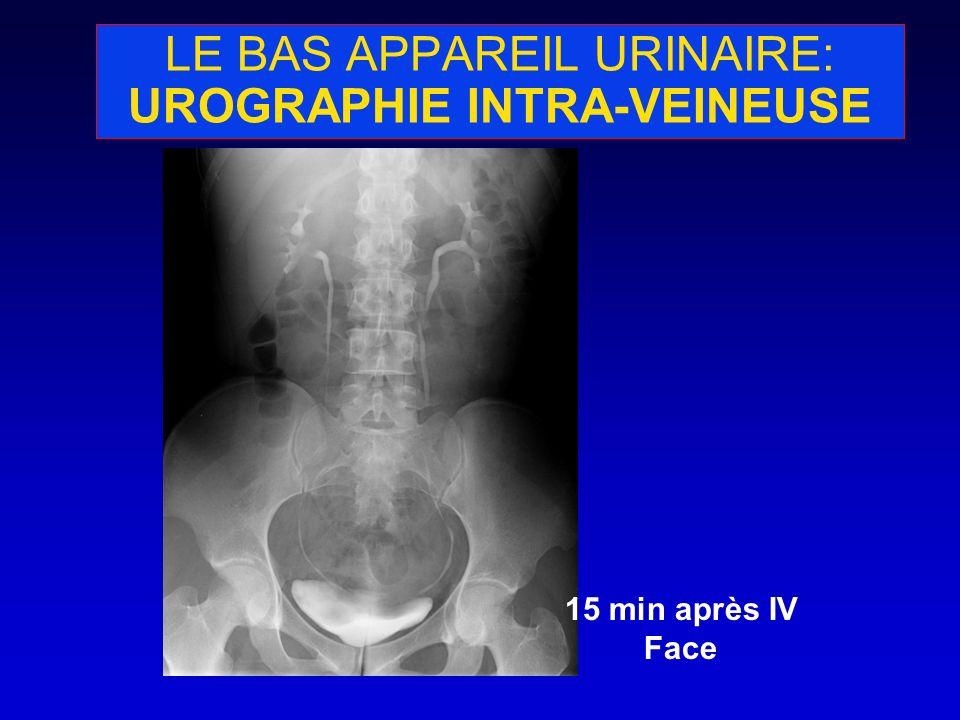 LE BAS APPAREIL URINAIRE: UROGRAPHIE INTRA-VEINEUSE