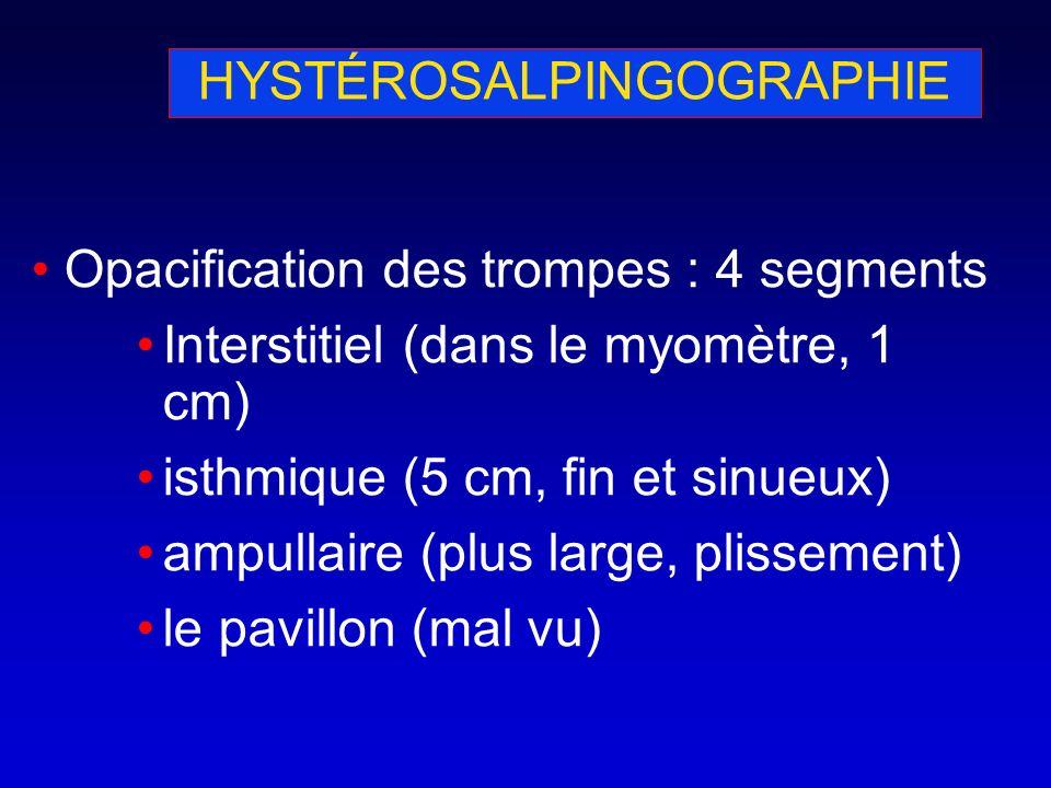 HYSTÉROSALPINGOGRAPHIE