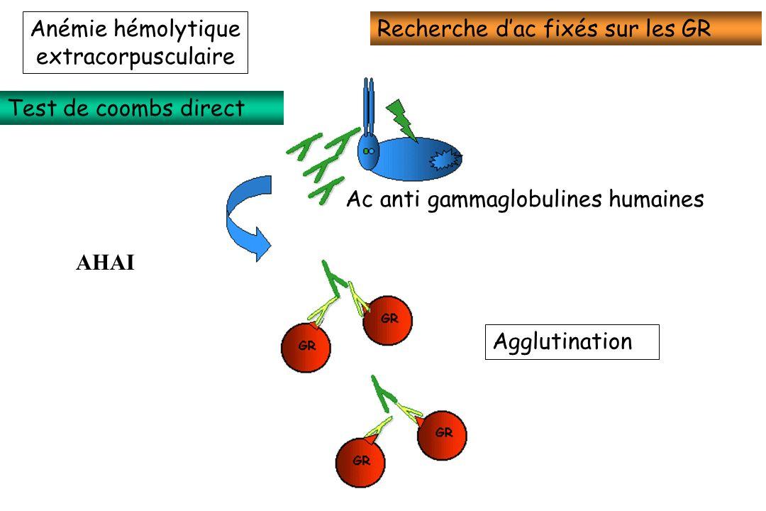 Anémie hémolytiqueextracorpusculaire. Recherche d'ac fixés sur les GR. Test de coombs direct. Ac anti gammaglobulines humaines.