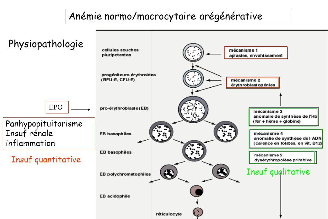 Anémie normo/macrocytaire arégénérative