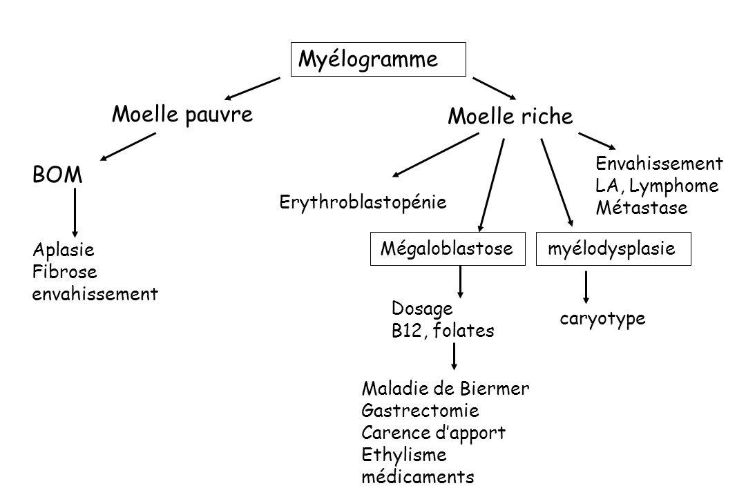 Myélogramme Moelle pauvre Moelle riche BOM Envahissement LA, Lymphome