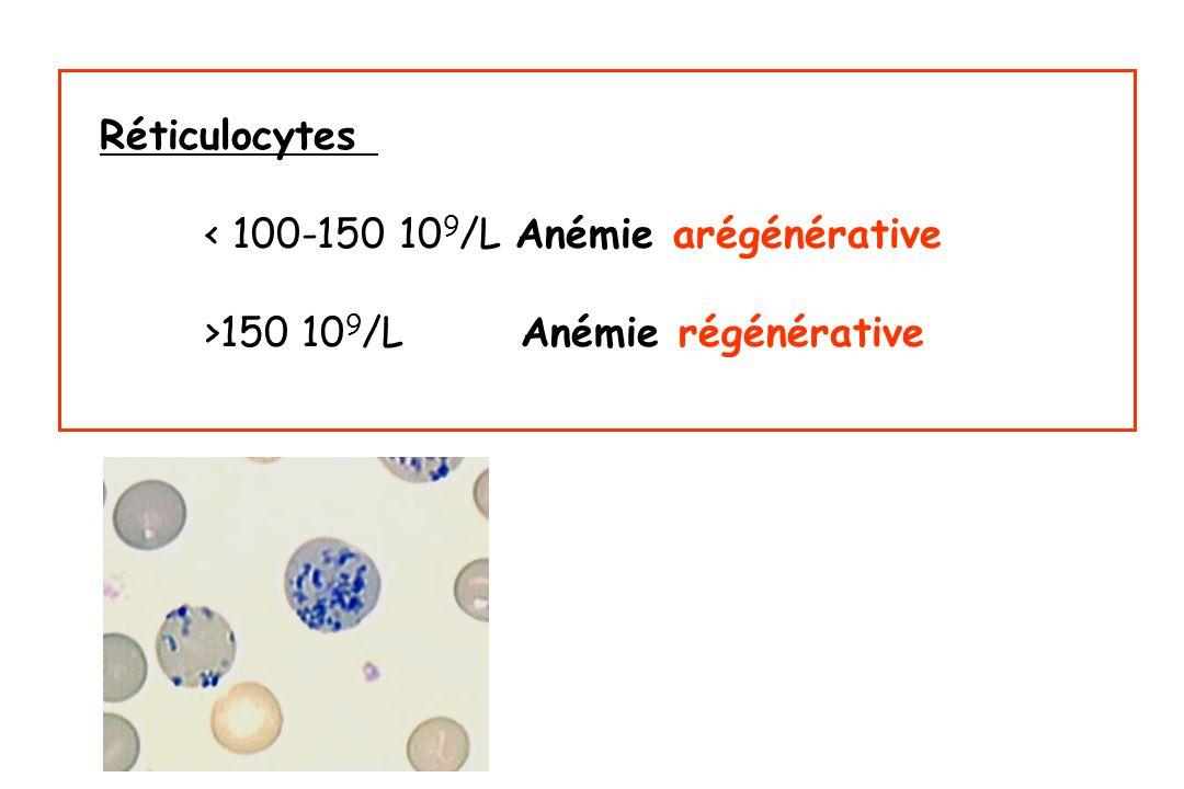 Réticulocytes < 100-150 109/L Anémie arégénérative >150 109/L Anémie régénérative