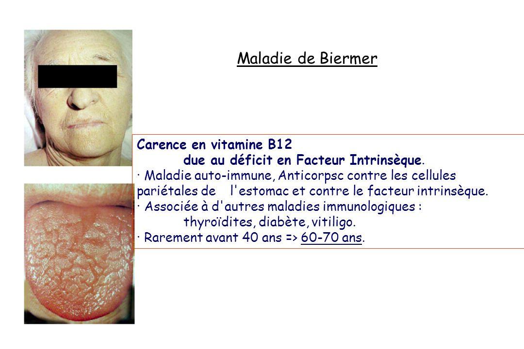Maladie de Biermer Carence en vitamine B12