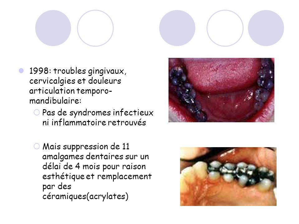 1998: troubles gingivaux, cervicalgies et douleurs articulation temporo-mandibulaire: