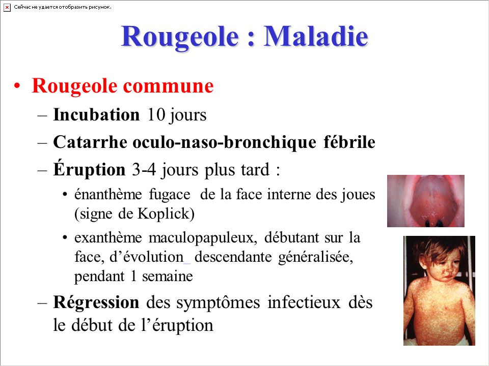 Rougeole : Maladie Rougeole commune Incubation 10 jours