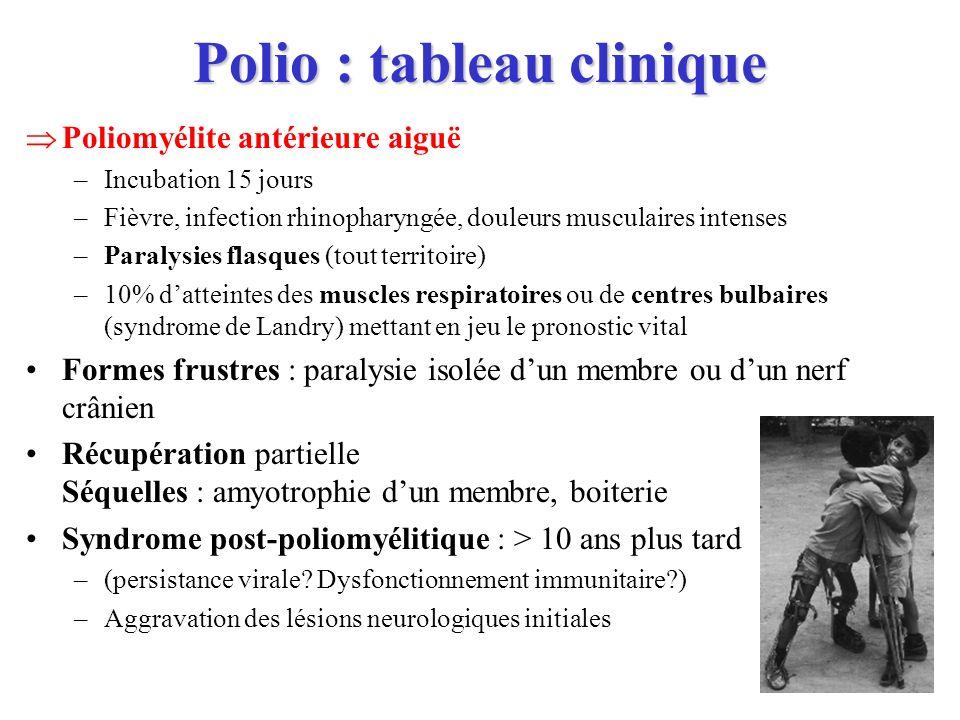 Polio : tableau clinique