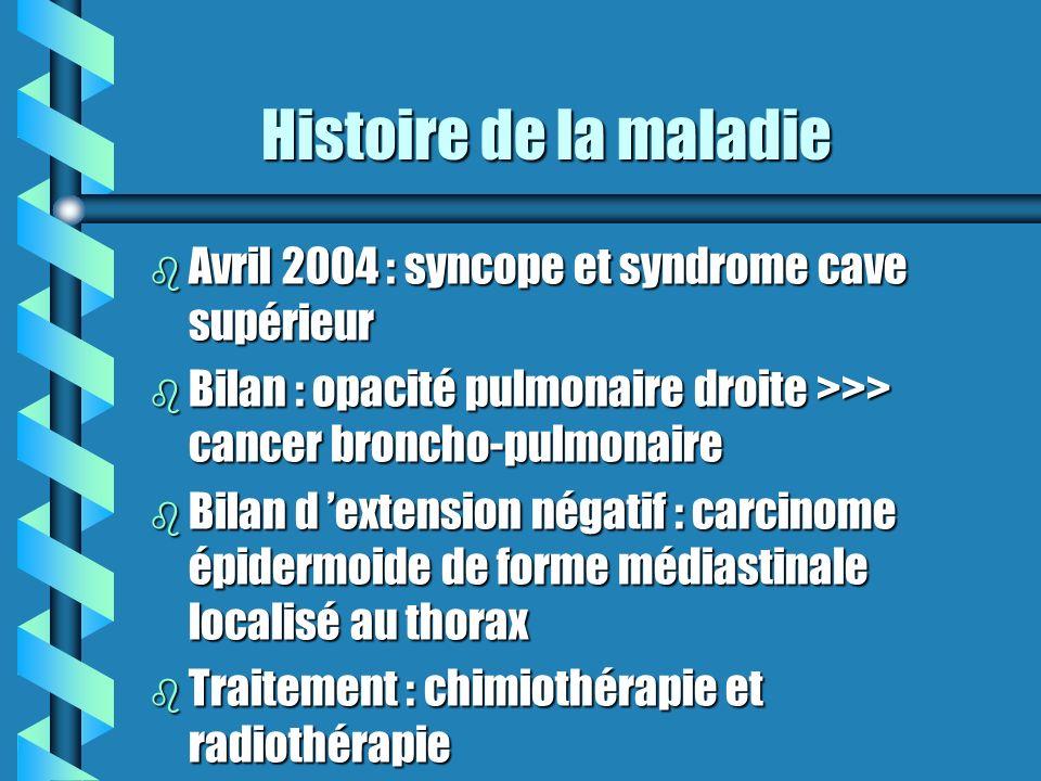 Histoire de la maladie Avril 2004 : syncope et syndrome cave supérieur