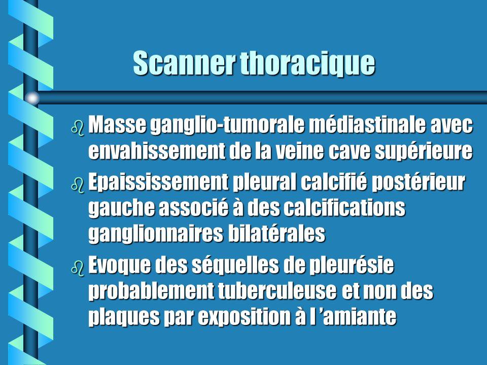 Scanner thoracique Masse ganglio-tumorale médiastinale avec envahissement de la veine cave supérieure.
