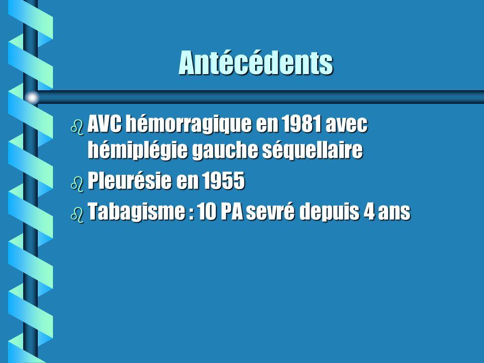 Antécédents AVC hémorragique en 1981 avec hémiplégie gauche séquellaire.