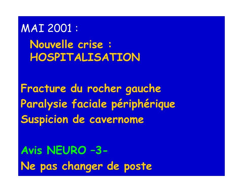MAI 2001 : Nouvelle crise : HOSPITALISATION. Fracture du rocher gauche. Paralysie faciale périphérique.