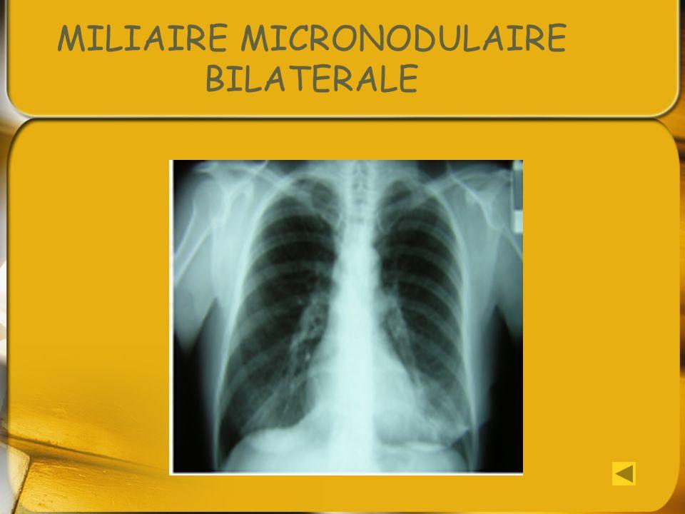 MILIAIRE MICRONODULAIRE BILATERALE