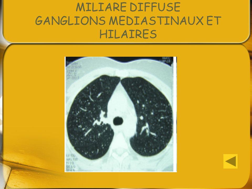 MILIARE DIFFUSE GANGLIONS MEDIASTINAUX ET HILAIRES