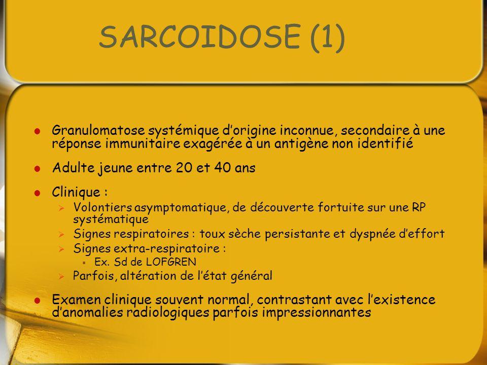 SARCOIDOSE (1) Granulomatose systémique d'origine inconnue, secondaire à une réponse immunitaire exagérée à un antigène non identifié.