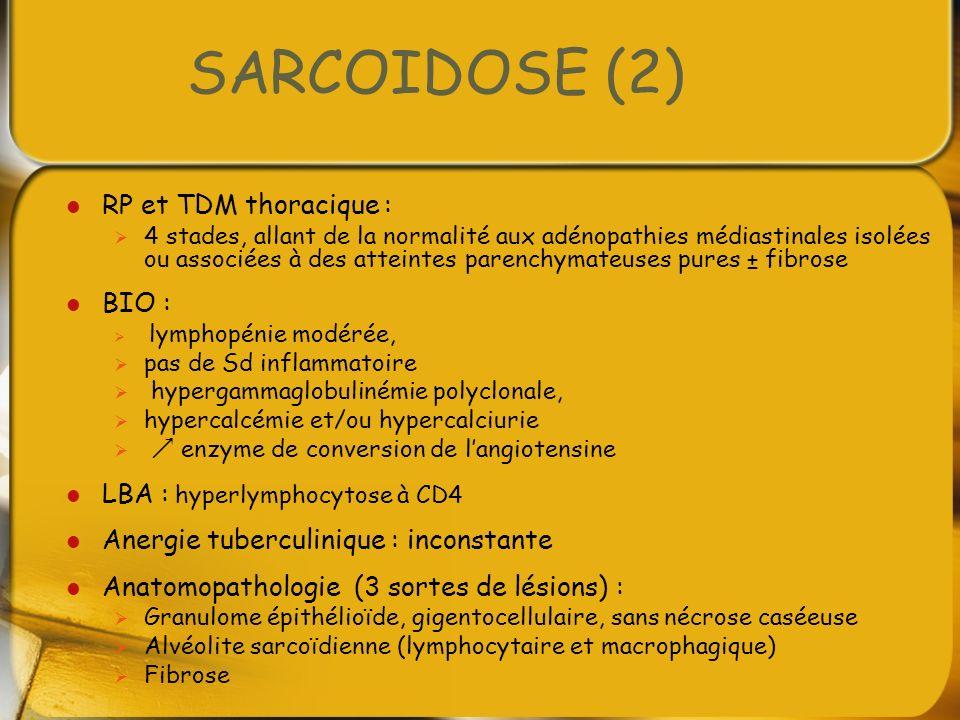 SARCOIDOSE (2) RP et TDM thoracique : BIO :