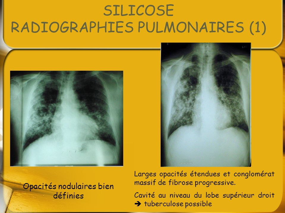 SILICOSE RADIOGRAPHIES PULMONAIRES (1)