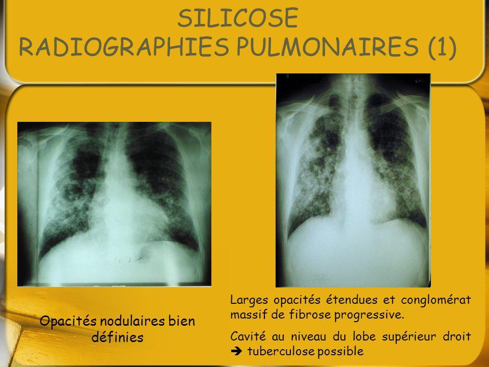 SILICOSE RADIOGRAPHIES PULMONAIRES (1)