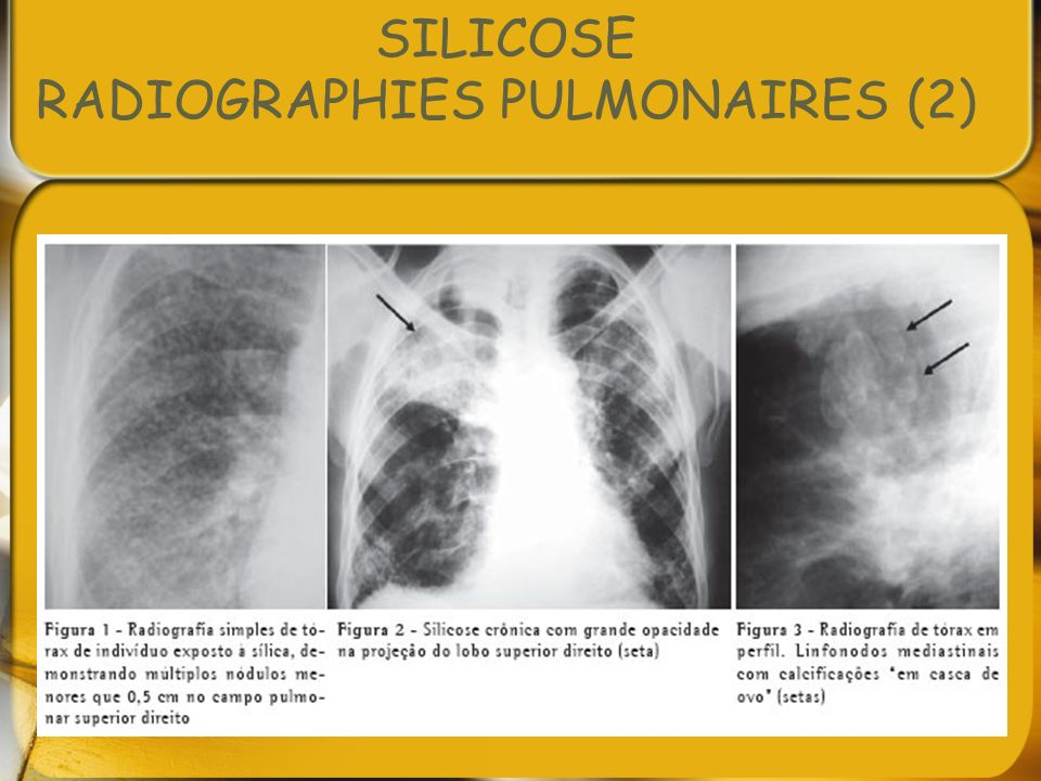 SILICOSE RADIOGRAPHIES PULMONAIRES (2)