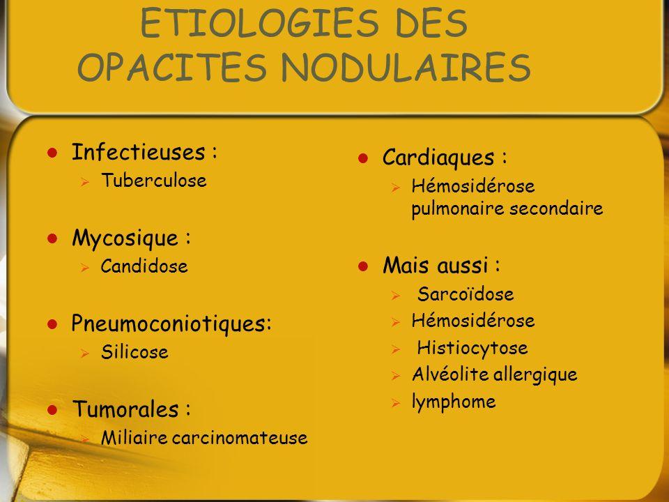 ETIOLOGIES DES OPACITES NODULAIRES