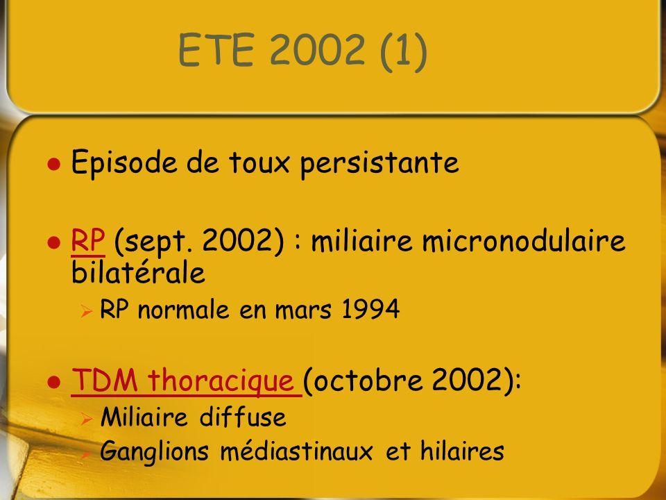 ETE 2002 (1) Episode de toux persistante