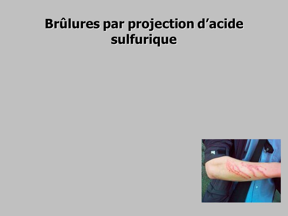 Brûlures par projection d'acide sulfurique