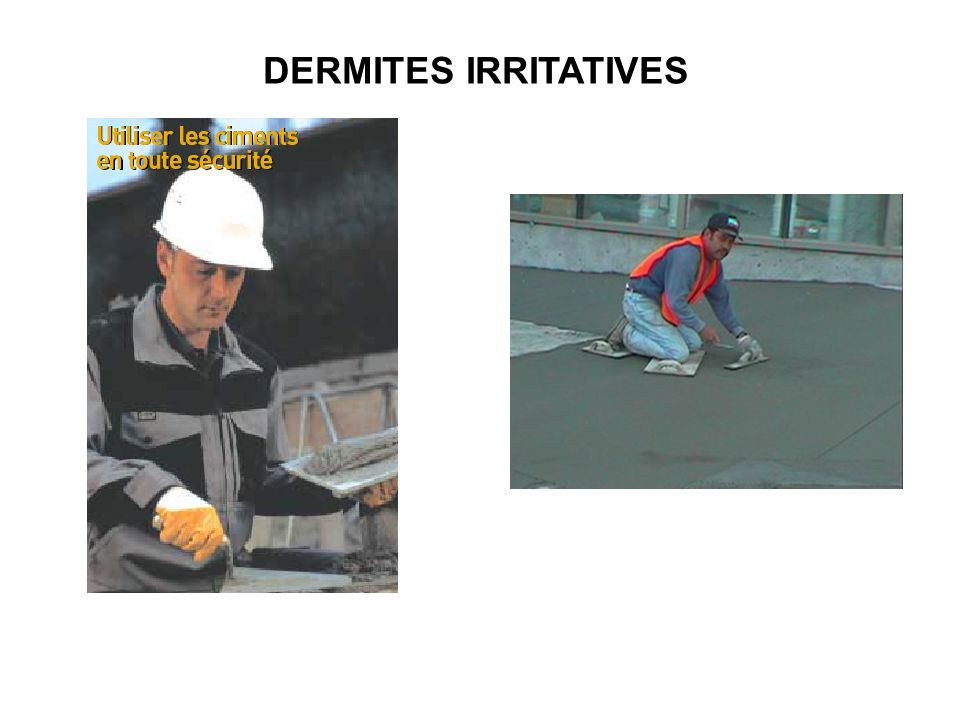 DERMITES IRRITATIVES