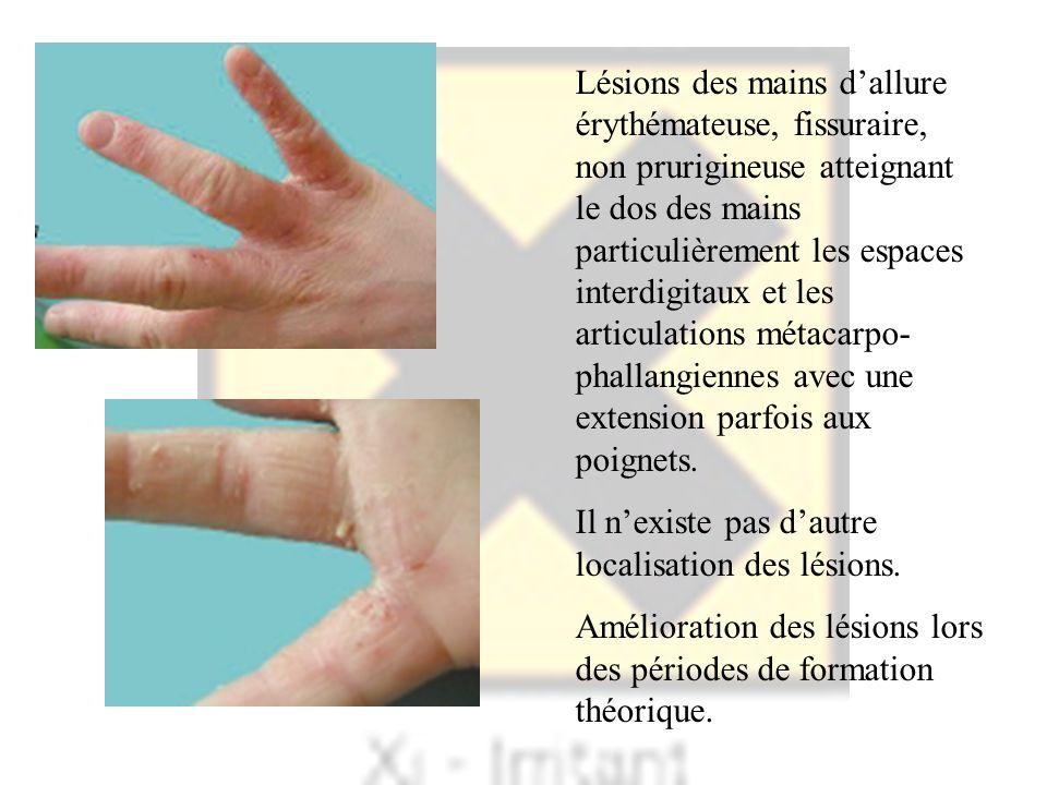 Lésions des mains d'allure érythémateuse, fissuraire, non prurigineuse atteignant le dos des mains particulièrement les espaces interdigitaux et les articulations métacarpo-phallangiennes avec une extension parfois aux poignets.