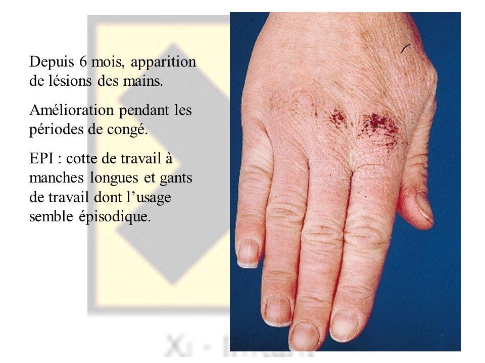 Depuis 6 mois, apparition de lésions des mains.