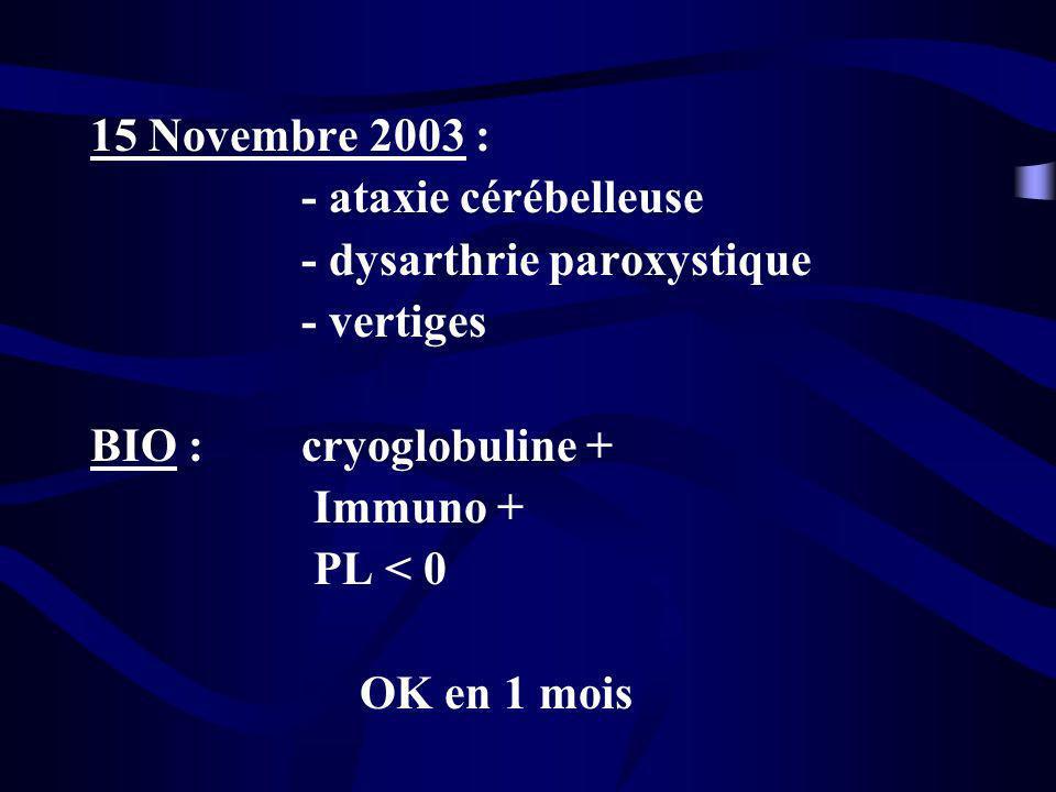 15 Novembre 2003 : - ataxie cérébelleuse. - dysarthrie paroxystique. - vertiges. BIO : cryoglobuline +
