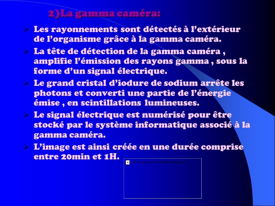 2)La gamma caméra: Les rayonnements sont détectés à l'extérieur de l'organisme grâce à la gamma caméra.